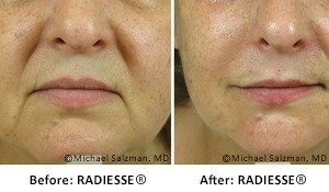 Laser Skin Tightening Albany, NY - What are Dermal fillers